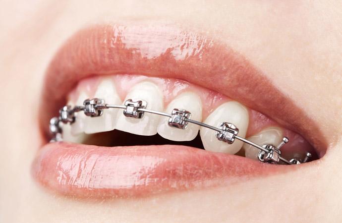 Ortodoncia Invisible Torrejon de Ardoz