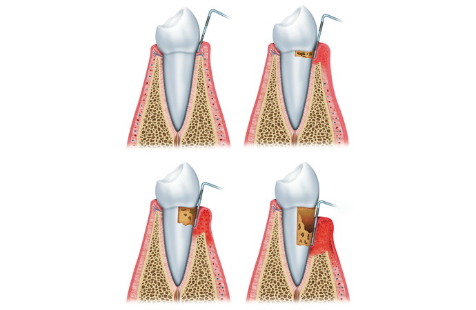 periodoncia