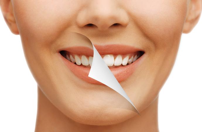 Higiene y Blanqueamiento Dental