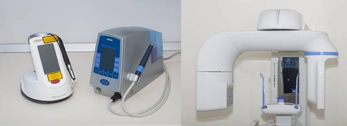 tecnologia-escaner3d-laser-perioscan
