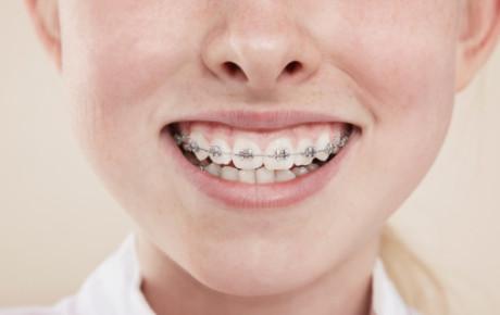 ortodoncia-uso de brackets