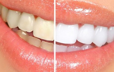 Alonso Dental - Blanqueamiento Dental