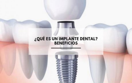 ¿Qué es un implante dental? Beneficios