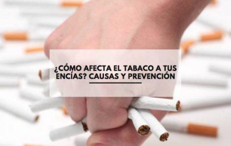 ¿Cómo afecta el tabaco a tus encías? Causas y prevención