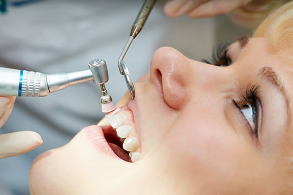 Diccionario odontológico (IV): la profilaxis dental