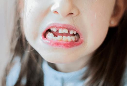 Apiñamiento dental en los más pequeños