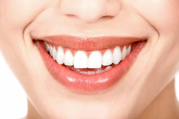 Diferencias entre el blanqueamiento dental y las carillas