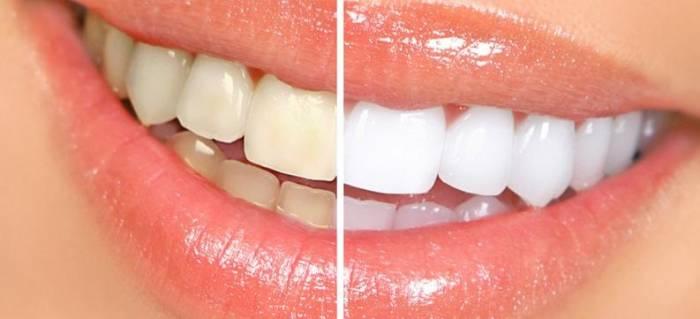 ¿Cuáles son las consecuencias del tabaco en la estética dental?