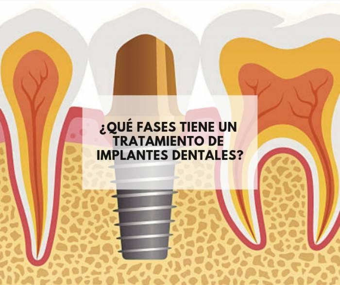 ¿Qué fases tiene un tratamiento de implantes dentales?
