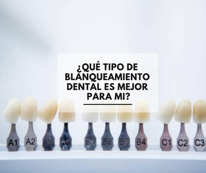 ¿Qué tipo de blanqueamiento dental es mejor para mi?