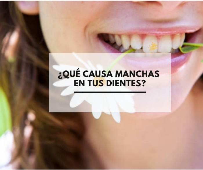 ¿Qué causa manchas en tus dientes?