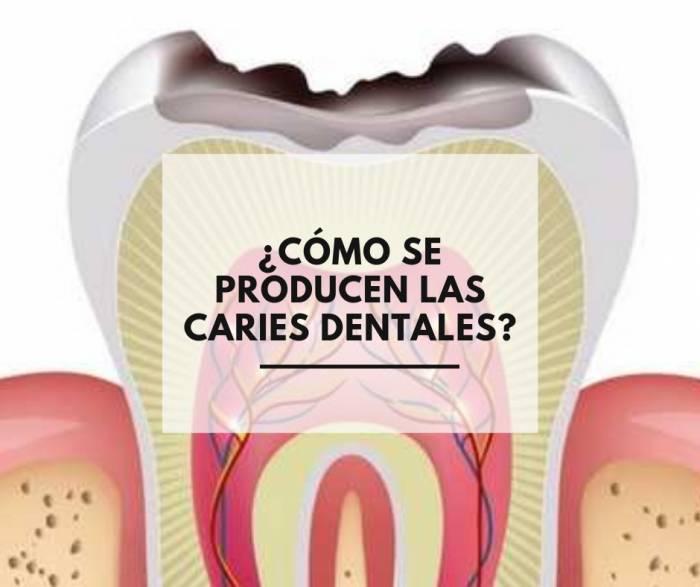 ¿Cómo se producen las caries dentales?