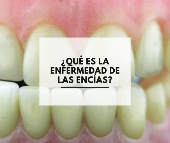 ¿Qué es la enfermedad de las encías?