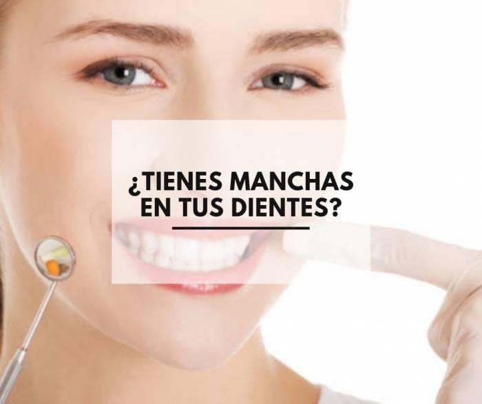 ¿Tienes manchas en tus dientes?