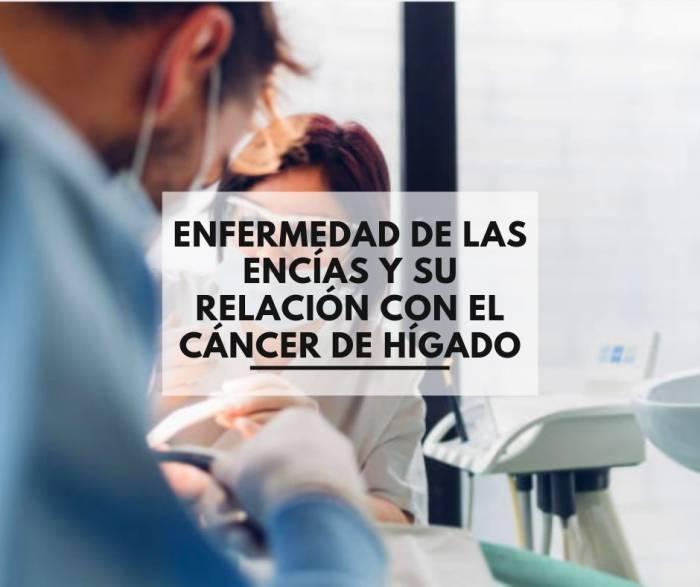 Enfermedad de las encías y su relación con el cáncer de hígado