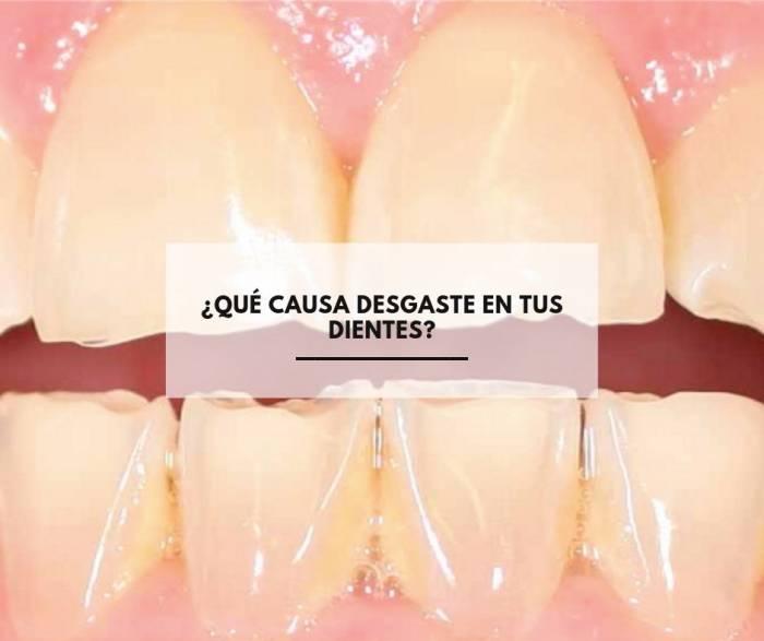 ¿Qué causa desgaste en tus dientes?