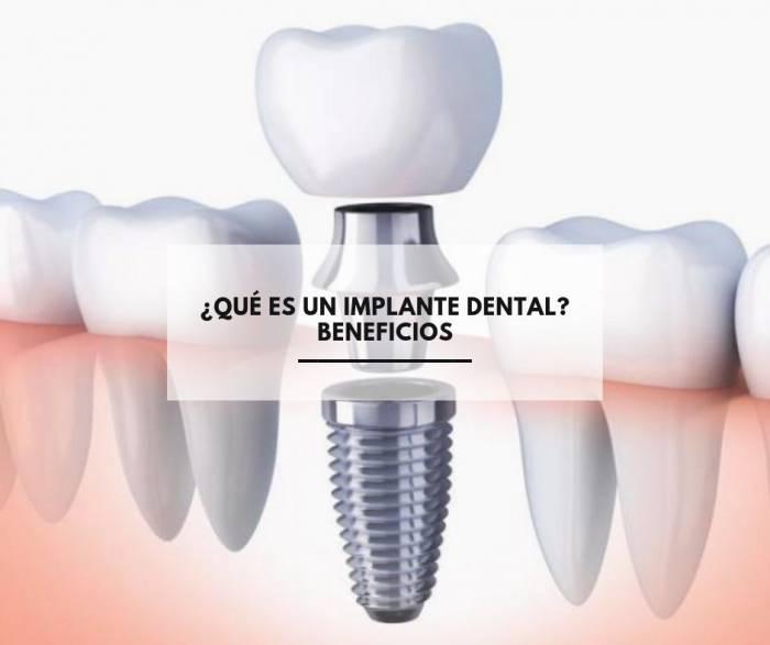 ¿Qué es un implante dental? Beneficios