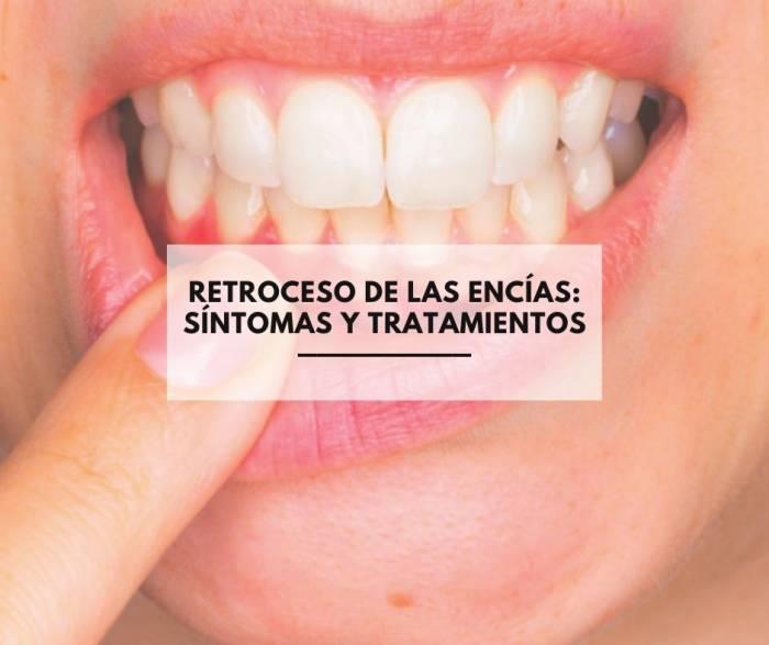 Retroceso de las encías: síntomas y tratamientos