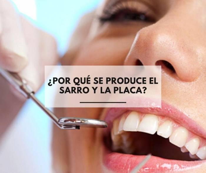 Eliminar la placa y el sarro de los dientes